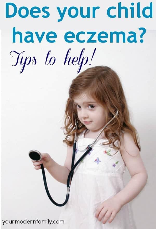 help with eczema